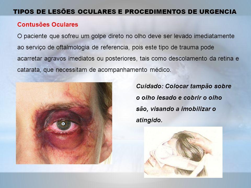Contusões Oculares O paciente que sofreu um golpe direto no olho deve ser levado imediatamente ao serviço de oftalmologia de referencia, pois este tipo de trauma pode acarretar agravos imediatos ou posteriores, tais como descolamento da retina e catarata, que necessitam de acompanhamento médico.