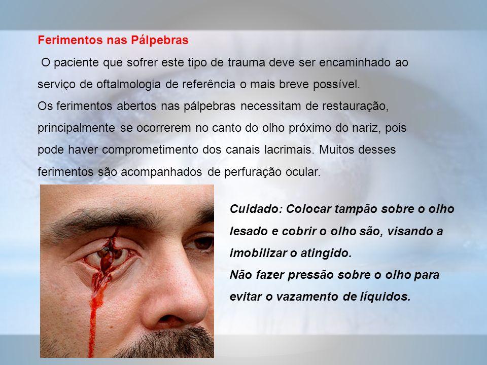 Ferimentos nas Pálpebras O paciente que sofrer este tipo de trauma deve ser encaminhado ao serviço de oftalmologia de referência o mais breve possível.