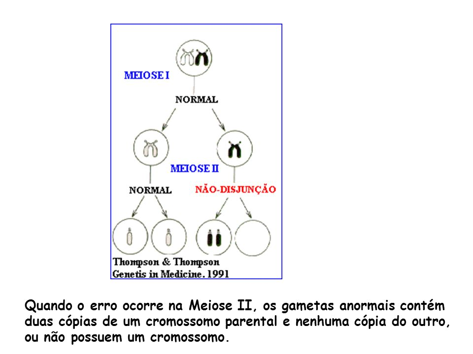 Quando o erro ocorre na Meiose II, os gametas anormais contém duas cópias de um cromossomo parental e nenhuma cópia do outro, ou não possuem um cromos