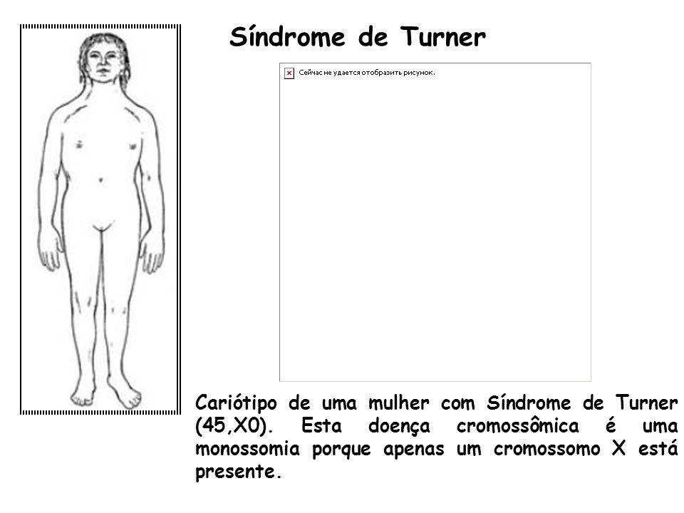 Síndrome de Turner Cariótipo de uma mulher com Síndrome de Turner (45,X0). Esta doença cromossômica é uma monossomia porque apenas um cromossomo X est