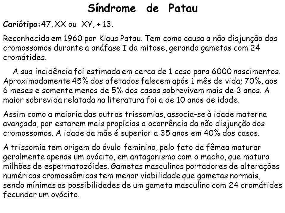 Síndrome de Patau Cariótipo:47, XX ou XY, + 13. Reconhecida em 1960 por Klaus Patau. Tem como causa a não disjunção dos cromossomos durante a anáfase