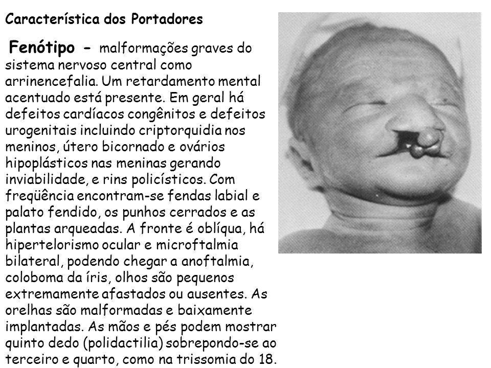Característica dos Portadores Fenótipo - malformações graves do sistema nervoso central como arrinencefalia. Um retardamento mental acentuado está pre