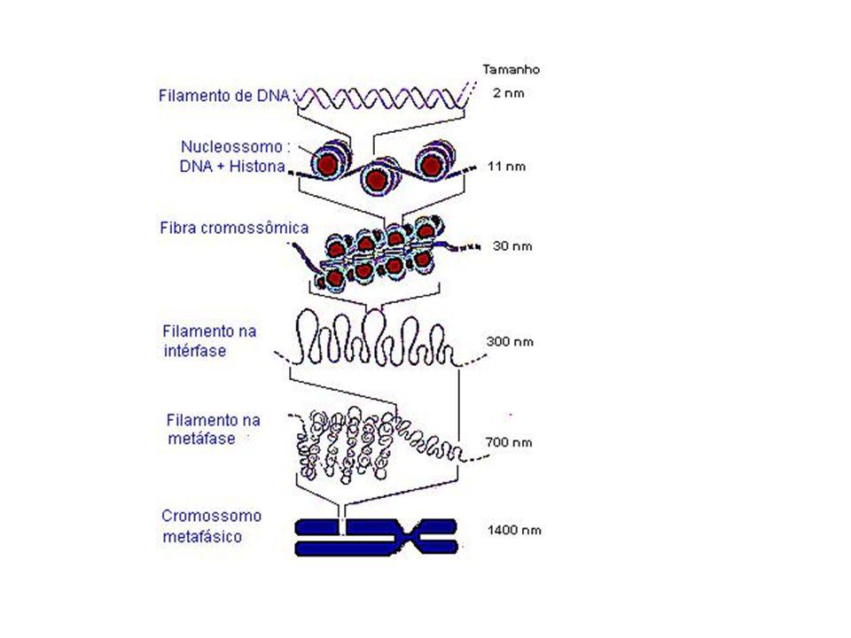 Cariótipo de uma mulher com Síndrome de Down, onde se vê 3 cópias do cromossomo 21.