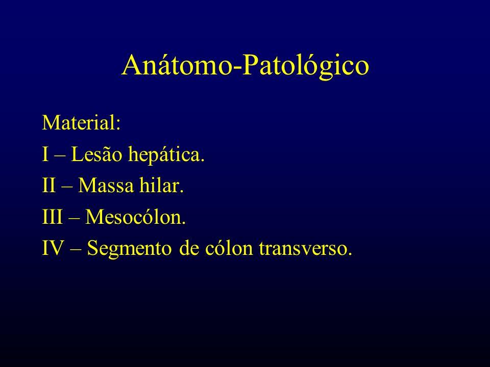 Anátomo-Patológico Material: I – Lesão hepática. II – Massa hilar. III – Mesocólon. IV – Segmento de cólon transverso.