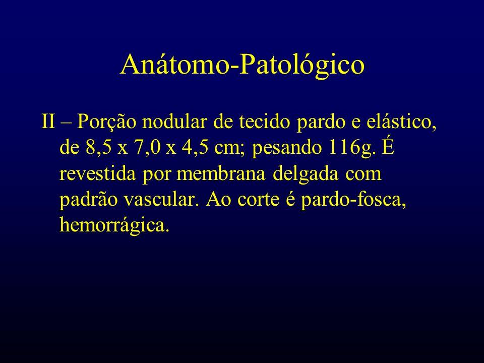 Anátomo-Patológico II – Porção nodular de tecido pardo e elástico, de 8,5 x 7,0 x 4,5 cm; pesando 116g. É revestida por membrana delgada com padrão va