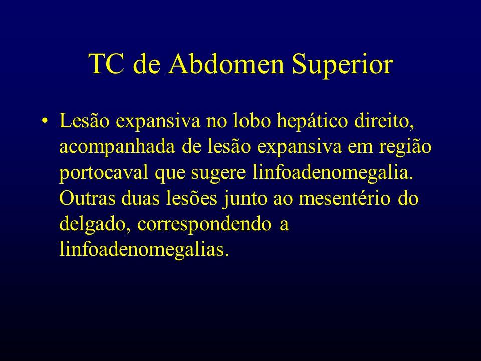 Anátomo-Patológico Material: I – Lesão hepática.II – Massa hilar.