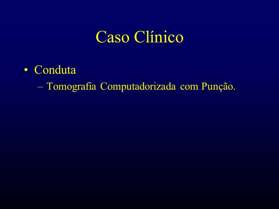 Caso Clínico Conduta –Tomografia Computadorizada com Punção.