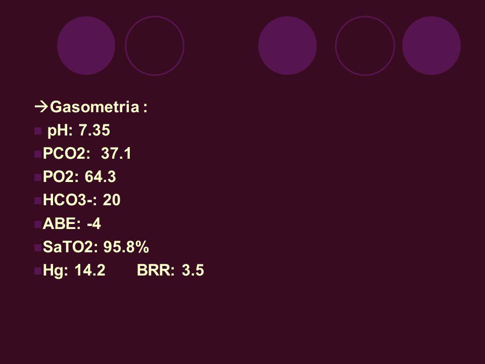 Gasometria : pH: 7.35 PCO2: 37.1 PO2: 64.3 HCO3-: 20 ABE: -4 SaTO2: 95.8% Hg: 14.2 BRR: 3.5