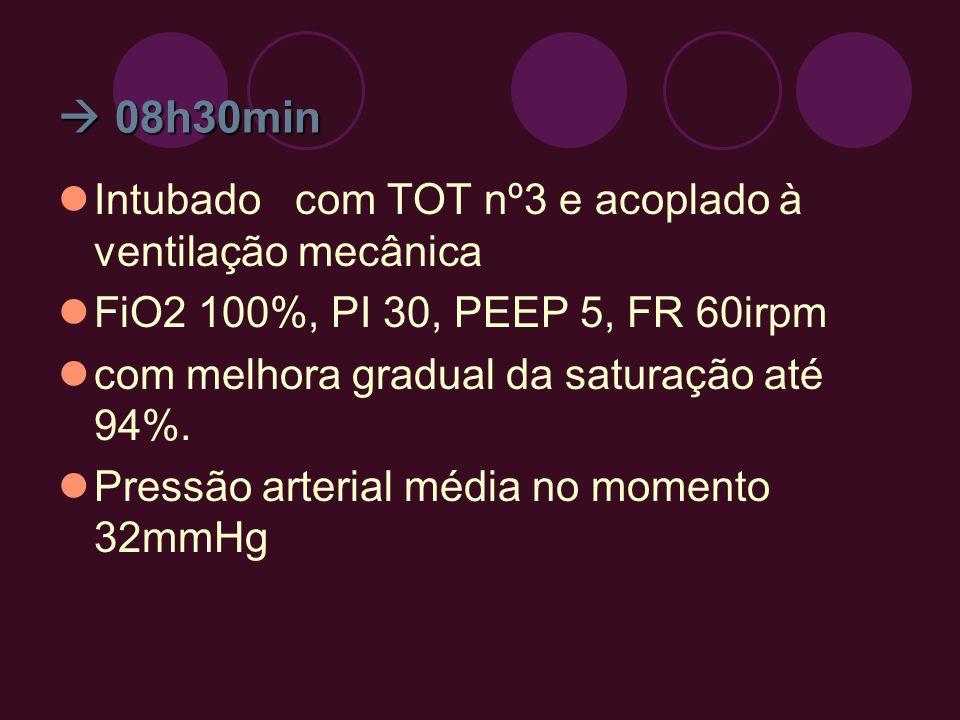 08h30min 08h30min Intubado com TOT nº3 e acoplado à ventilação mecânica FiO2 100%, PI 30, PEEP 5, FR 60irpm com melhora gradual da saturação até 94%.
