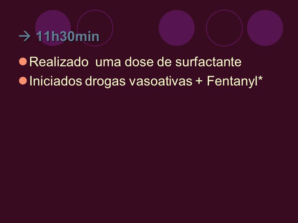 11h30min 11h30min Realizado uma dose de surfactante Iniciados drogas vasoativas + Fentanyl*