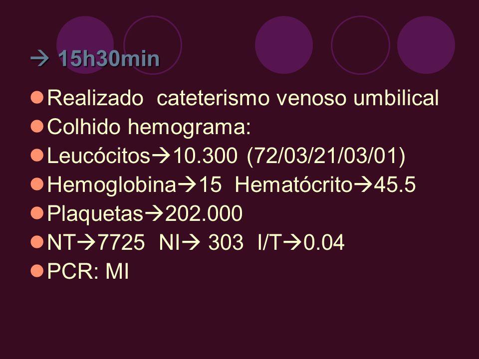 15h30min 15h30min Realizado cateterismo venoso umbilical Colhido hemograma: Leucócitos 10.300 (72/03/21/03/01) Hemoglobina 15 Hematócrito 45.5 Plaquet