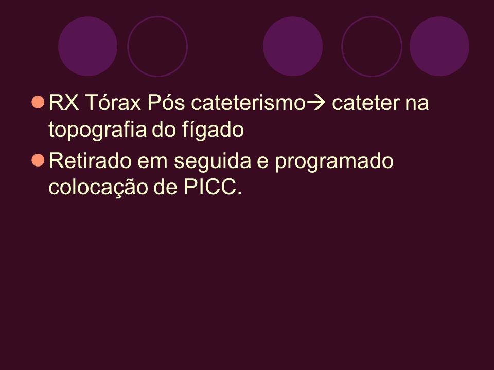 RX Tórax Pós cateterismo cateter na topografia do fígado Retirado em seguida e programado colocação de PICC.