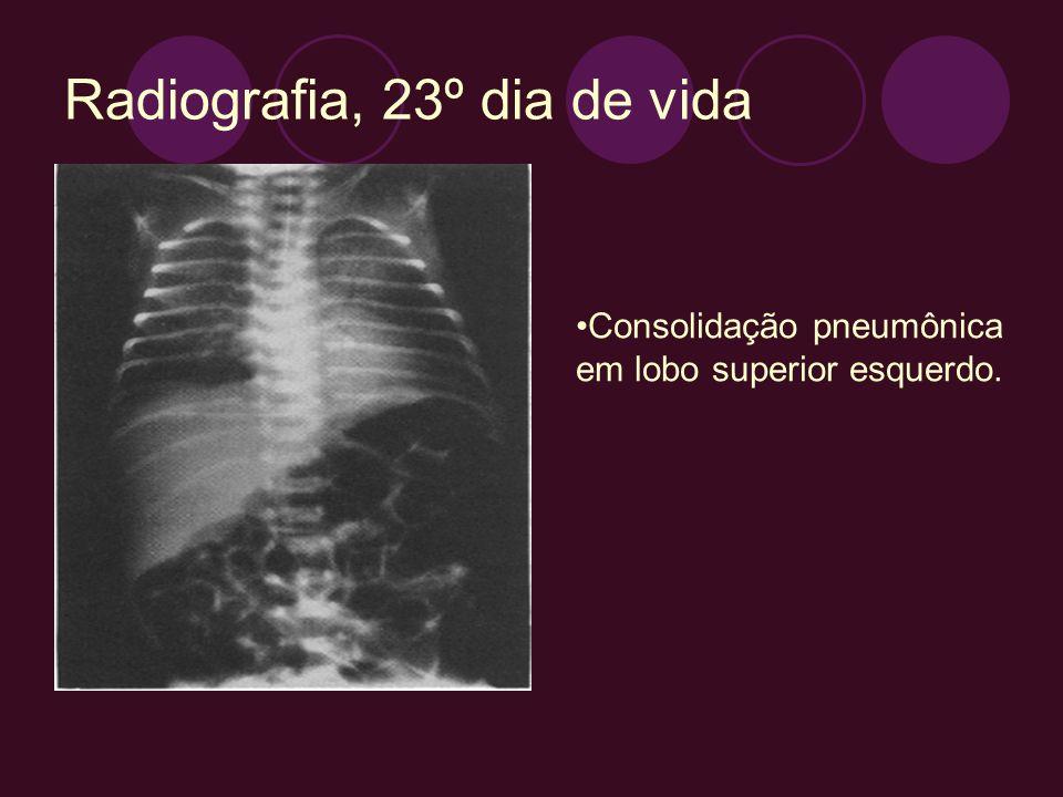 Radiografia, 23º dia de vida Consolidação pneumônica em lobo superior esquerdo.