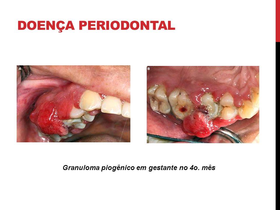 DOENÇA PERIODONTAL Granuloma piogênico em gestante no 4o. mês