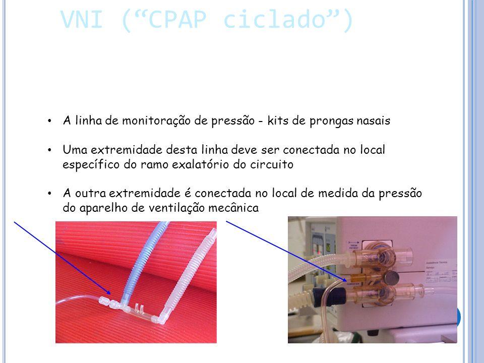 A linha de monitoração de pressão - kits de prongas nasais Uma extremidade desta linha deve ser conectada no local específico do ramo exalatório do circuito A outra extremidade é conectada no local de medida da pressão do aparelho de ventilação mecânica VNI (CPAP ciclado) VNI (CPAP ciclado)