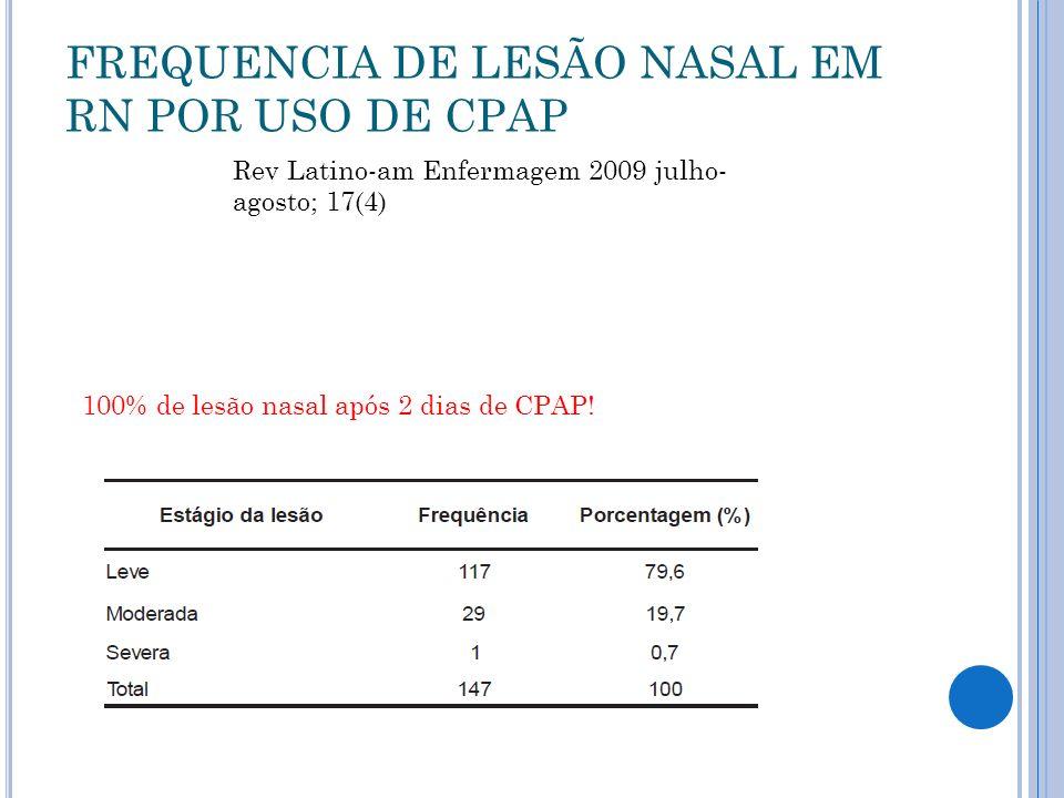 FREQUENCIA DE LESÃO NASAL EM RN POR USO DE CPAP 100% de lesão nasal após 2 dias de CPAP.
