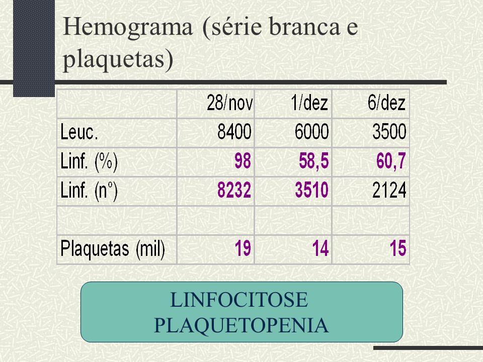 Hemograma (série branca e plaquetas) LINFOCITOSE PLAQUETOPENIA