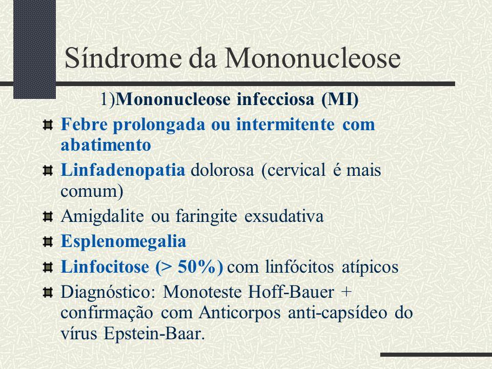 Síndrome da Mononucleose 1)Mononucleose infecciosa (MI) Febre prolongada ou intermitente com abatimento Linfadenopatia dolorosa (cervical é mais comum