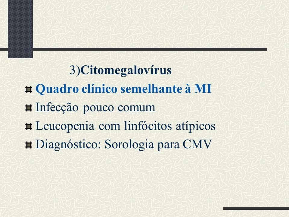 3)Citomegalovírus Quadro clínico semelhante à MI Infecção pouco comum Leucopenia com linfócitos atípicos Diagnóstico: Sorologia para CMV