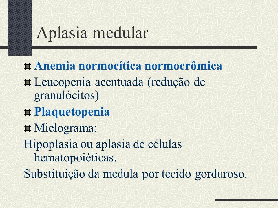 Aplasia medular Anemia normocítica normocrômica Leucopenia acentuada (redução de granulócitos) Plaquetopenia Mielograma: Hipoplasia ou aplasia de célu