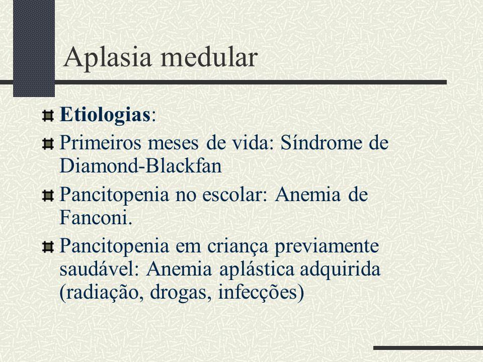 Aplasia medular Etiologias: Primeiros meses de vida: Síndrome de Diamond-Blackfan Pancitopenia no escolar: Anemia de Fanconi. Pancitopenia em criança