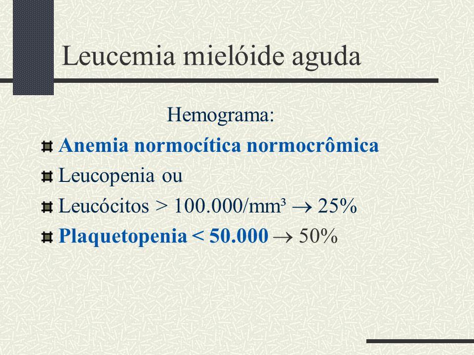 Leucemia mielóide aguda Hemograma: Anemia normocítica normocrômica Leucopenia ou Leucócitos > 100.000/mm³ 25% Plaquetopenia < 50.000 50%