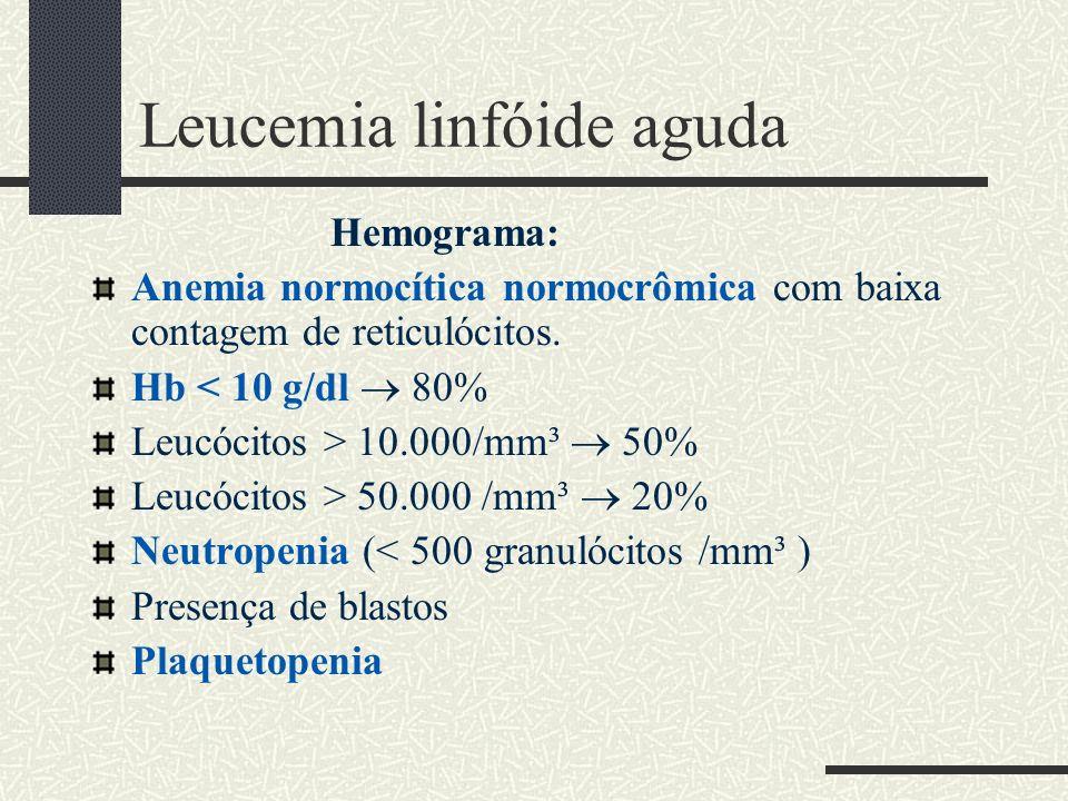 Leucemia linfóide aguda Hemograma: Anemia normocítica normocrômica com baixa contagem de reticulócitos. Hb < 10 g/dl 80% Leucócitos > 10.000/mm³ 50% L