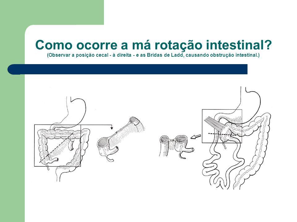 Como ocorre a má rotação intestinal? (Observar a posição cecal - à direita - e as Bridas de Ladd, causando obstrução intestinal.)
