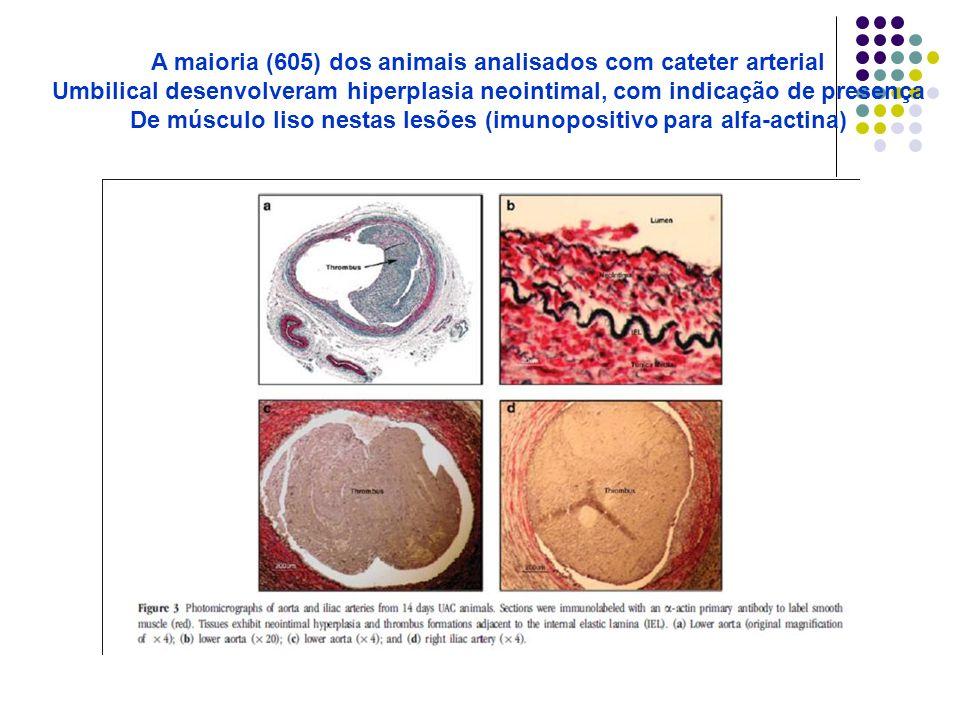A maioria (605) dos animais analisados com cateter arterial Umbilical desenvolveram hiperplasia neointimal, com indicação de presença De músculo liso