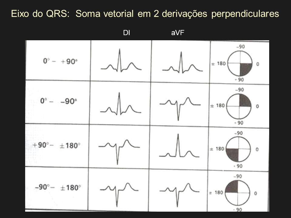 Eixo do QRS:Soma vetorial em 2 derivações perpendiculares DIaVF