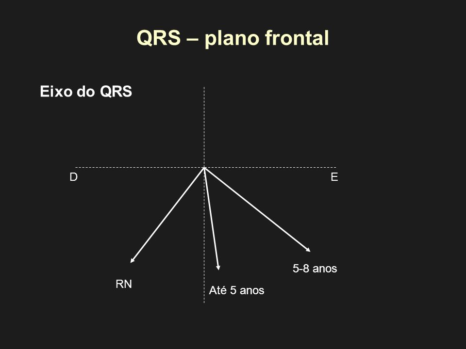 QRS – plano frontal RN Até 5 anos 5-8 anos Eixo do QRS ED