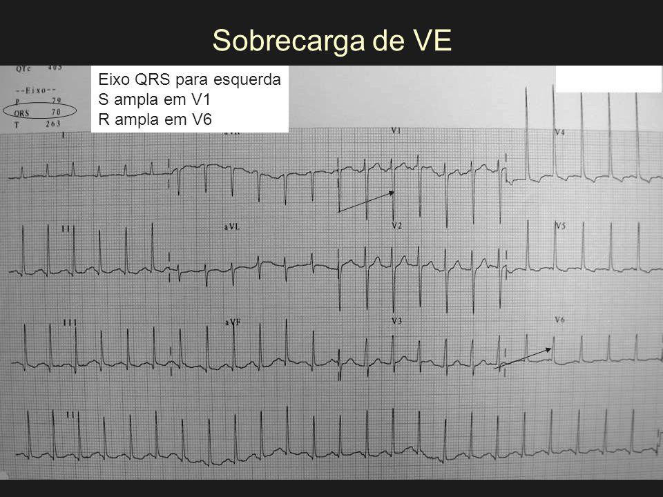 Sobrecarga de VE Eixo QRS para esquerda S ampla em V1 R ampla em V6