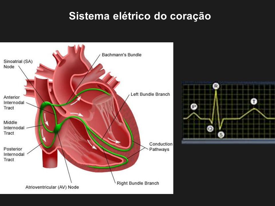 Sistema Cardíaco de Condução Eletrocardiograma normal Intervalo PR: 120-200 ms Complexo QRS: 60-100 ms Intervalo QT: 360-400ms