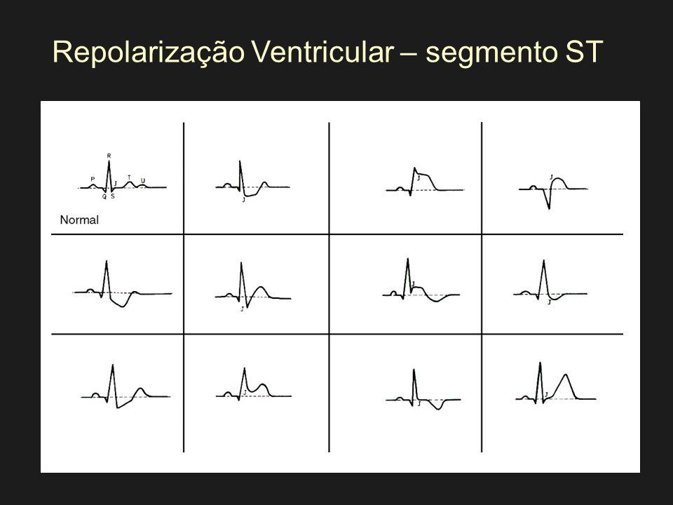 Repolarização Ventricular – segmento ST