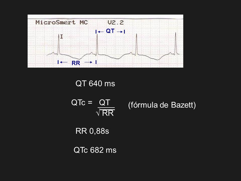 QT RR QT 640 ms RR 0,88s QTc 682 ms QTc = QT RR (fórmula de Bazett)