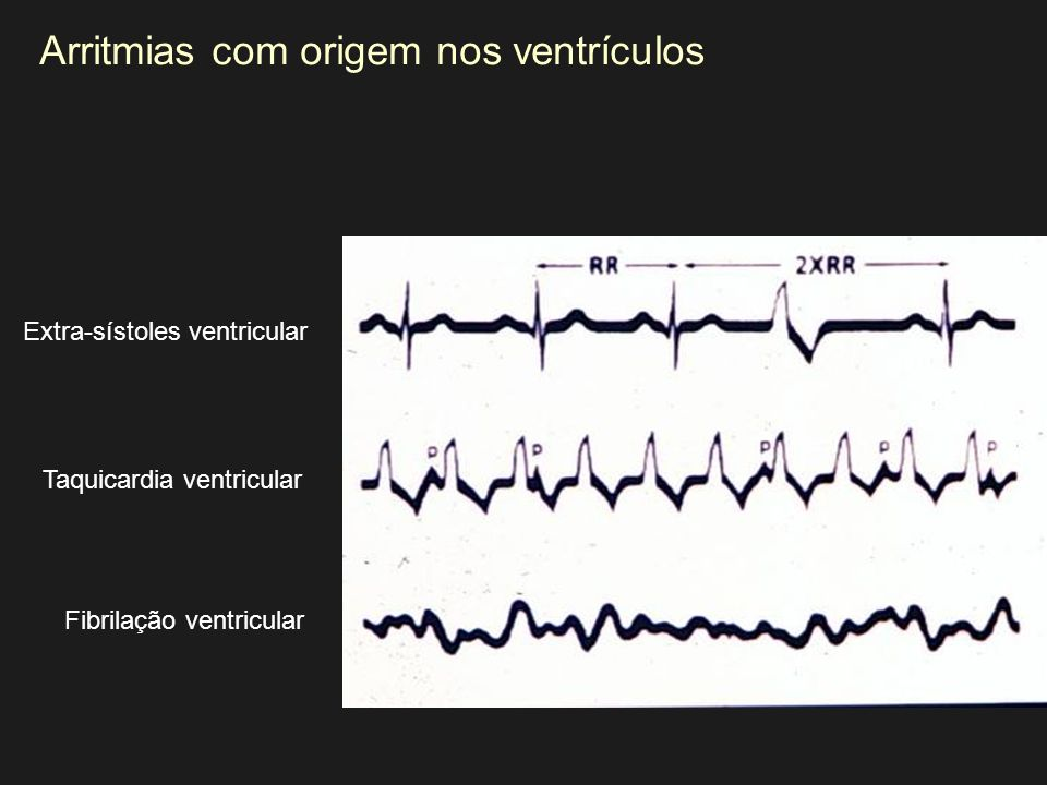 Extra-sístoles ventricular Fibrilação ventricular Taquicardia ventricular Arritmias com origem nos ventrículos