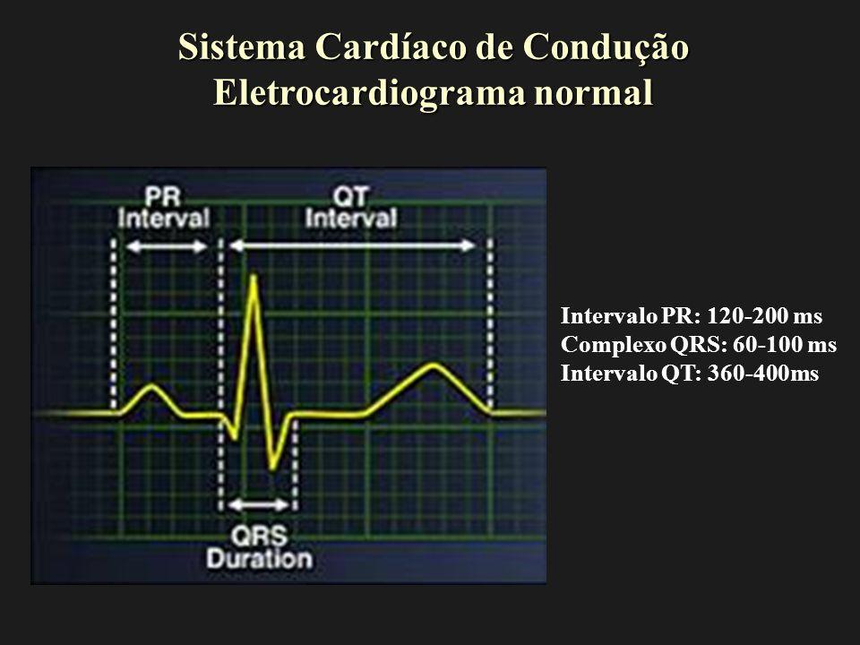Intervalo PR RN e Lactentes: 70-150ms Crianças: 100-170ms Adolescentes: 110-190ms