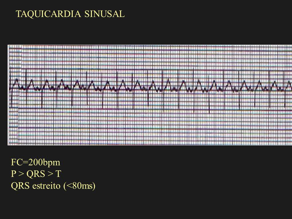 FC=200bpm P > QRS > T QRS estreito (<80ms) TAQUICARDIA SINUSAL