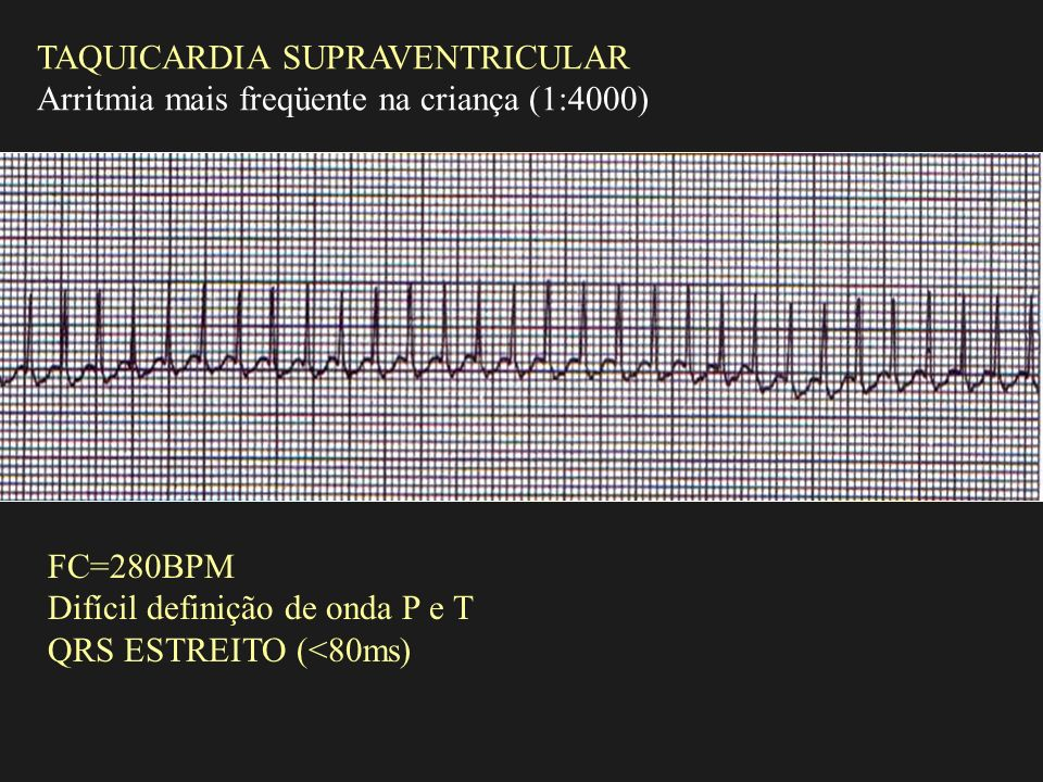 TAQUICARDIA SUPRAVENTRICULAR Arritmia mais freqüente na criança (1:4000) FC=280BPM Difícil definição de onda P e T QRS ESTREITO (<80ms)
