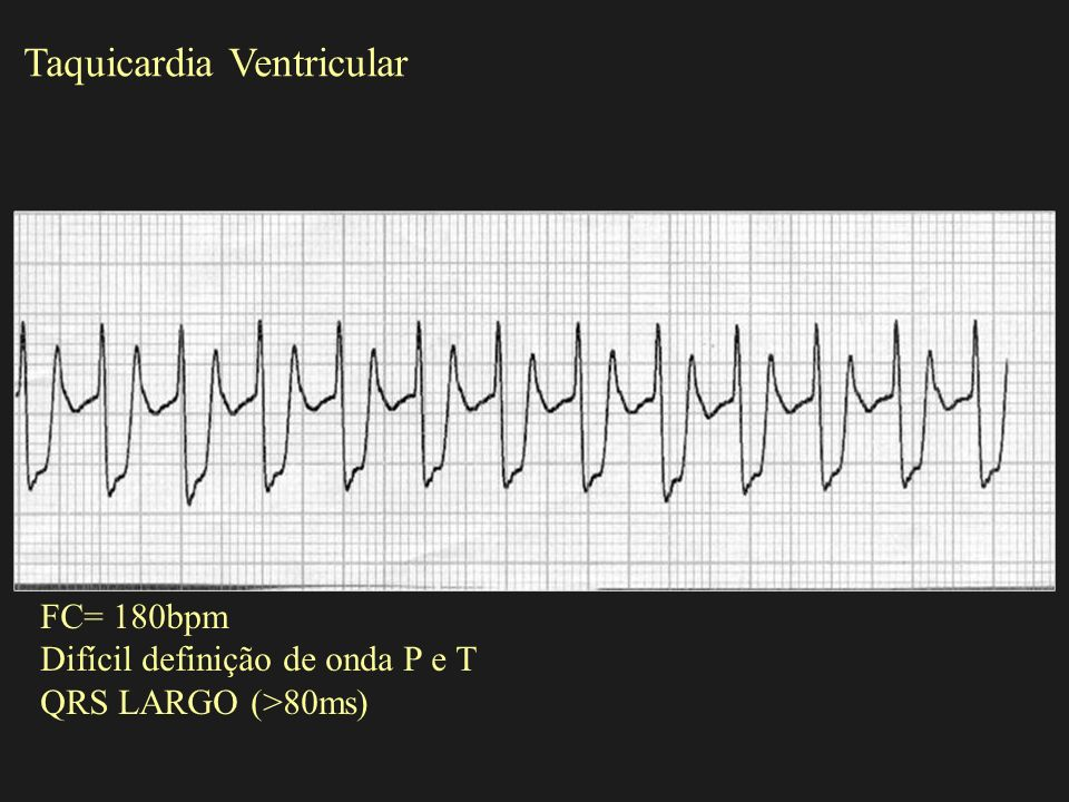 Taquicardia Ventricular FC= 180bpm Difícil definição de onda P e T QRS LARGO (>80ms)