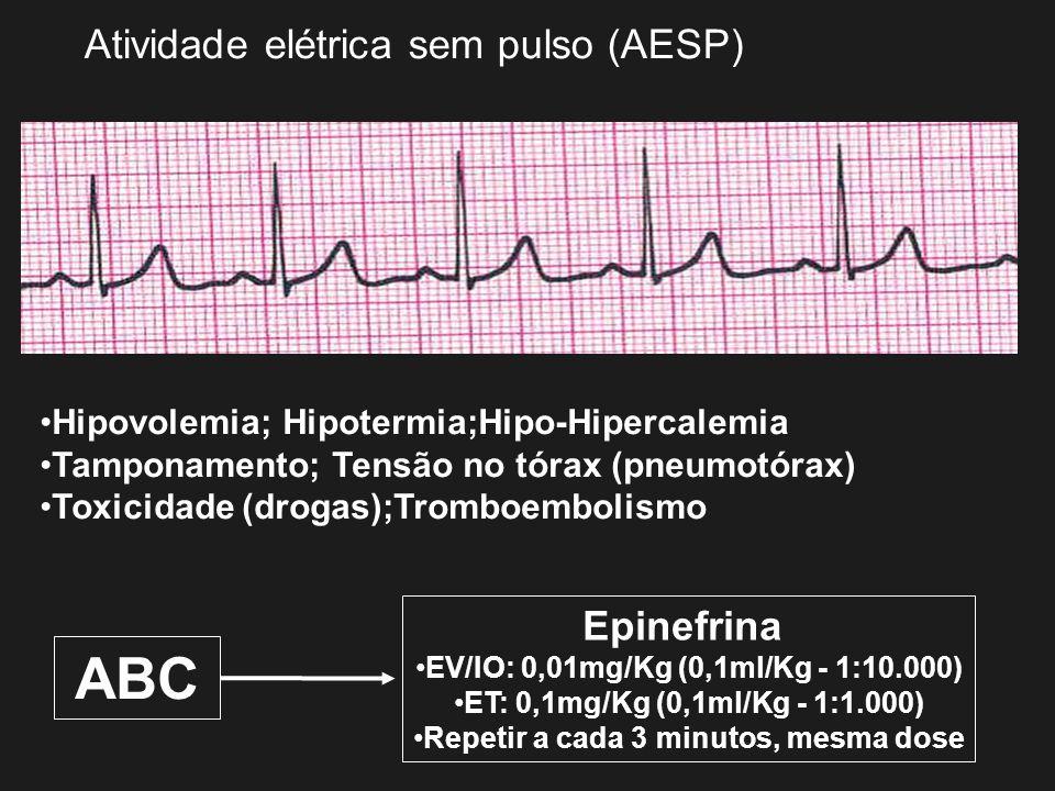 Atividade elétrica sem pulso (AESP) Hipovolemia; Hipotermia;Hipo-Hipercalemia Tamponamento; Tensão no tórax (pneumotórax) Toxicidade (drogas);Tromboem