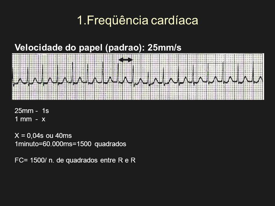1.Freqüência cardíaca Velocidade do papel (padrao): 25mm/s 25mm - 1s 1 mm - x X = 0,04s ou 40ms 1minuto=60.000ms=1500 quadrados FC= 1500/ n. de quadra