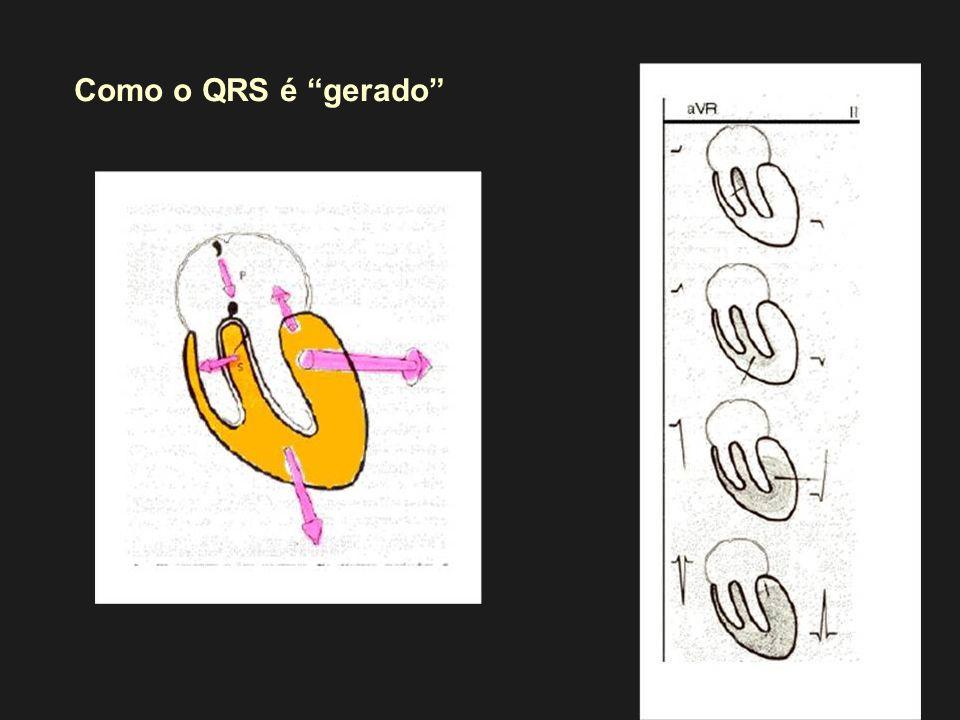 Como o QRS é gerado