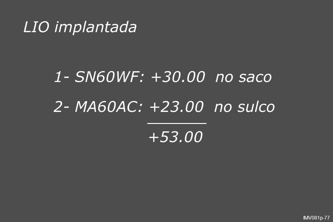 IMV081p-77 LIO implantada 1- SN60WF: +30.00 no saco 2- MA60AC: +23.00 no sulco +53.00