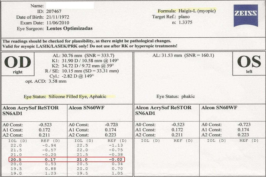IMV081p-79 como faço biometria em olhos com óleo de silicone e Buckle