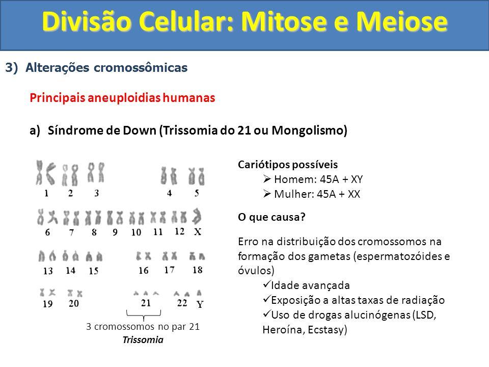 3) Alterações cromossômicas Principais aneuploidias humanas a)Síndrome de Down (Trissomia do 21 ou Mongolismo) 3 cromossomos no par 21 Trissomia Cariótipos possíveis Homem: 45A + XY Mulher: 45A + XX O que causa.