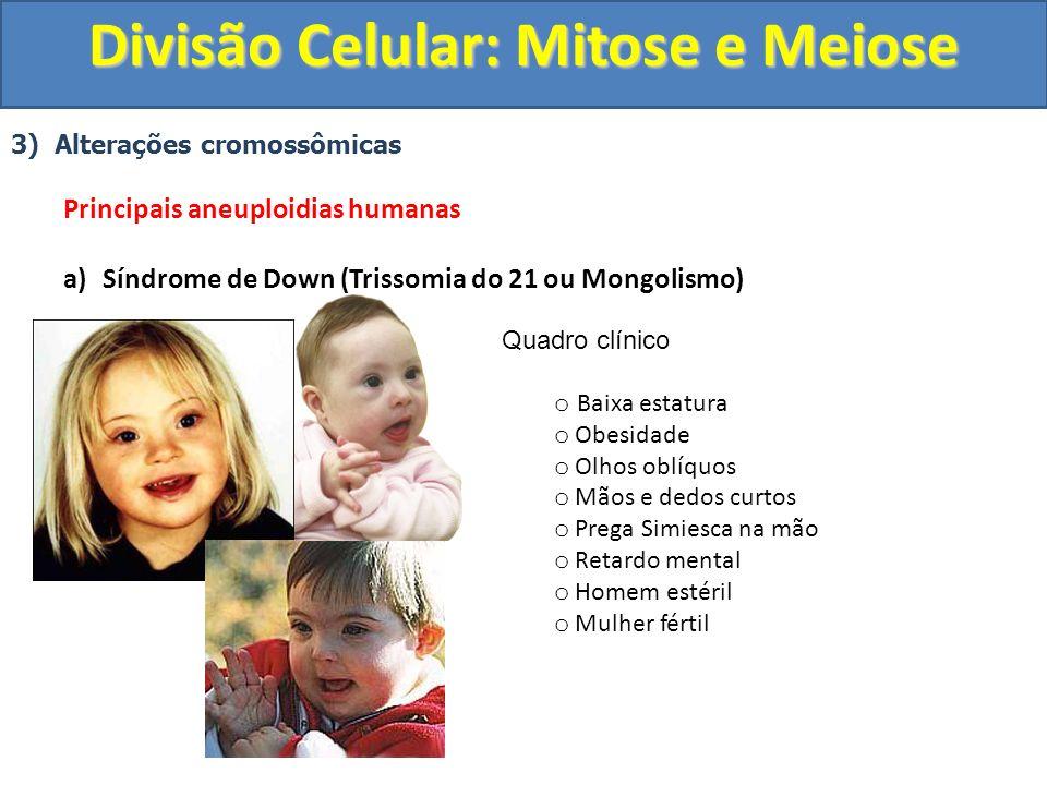 3) Alterações cromossômicas Principais aneuploidias humanas a)Síndrome de Down (Trissomia do 21 ou Mongolismo) Quadro clínico o Baixa estatura o Obesidade o Olhos oblíquos o Mãos e dedos curtos o Prega Simiesca na mão o Retardo mental o Homem estéril o Mulher fértil Divisão Celular: Mitose e Meiose