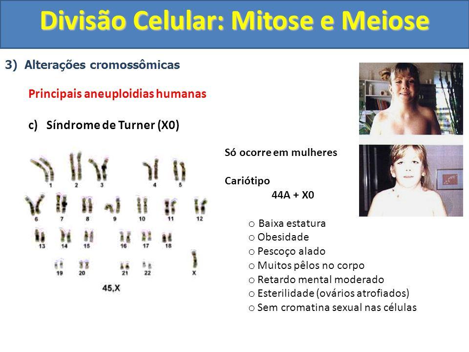 3) Alterações cromossômicas Principais aneuploidias humanas c) Síndrome de Turner (X0) Só ocorre em mulheres Cariótipo 44A + X0 o Baixa estatura o Obesidade o Pescoço alado o Muitos pêlos no corpo o Retardo mental moderado o Esterilidade (ovários atrofiados) o Sem cromatina sexual nas células Divisão Celular: Mitose e Meiose