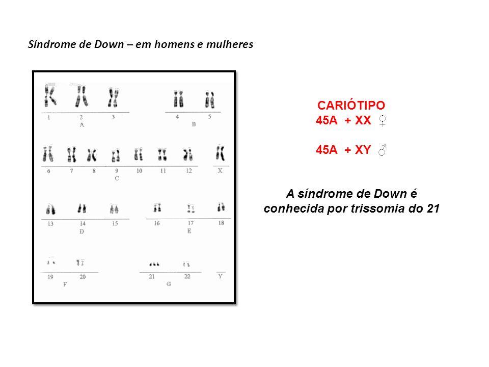 Síndrome de Turner – em mulheres CARIÓTIPO 44A + X