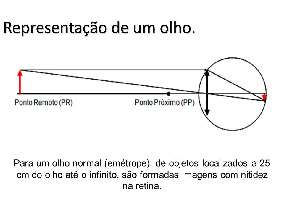 Olho: Física A Retina é onde a imagem será formada. A Córnea é uma membrana transparente que protege o olho. O Cristalino é uma lente convergente com